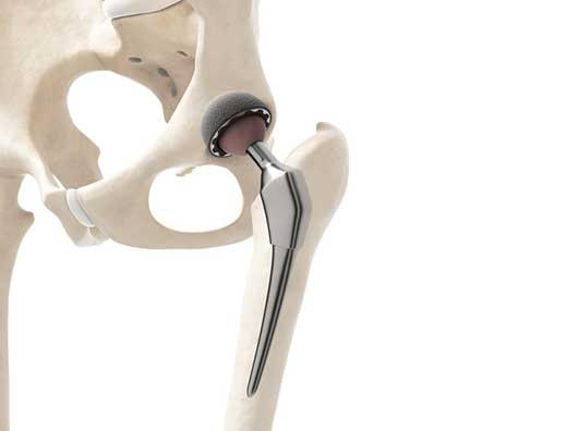 Total-Hip-Replacement-Anterior-Approach